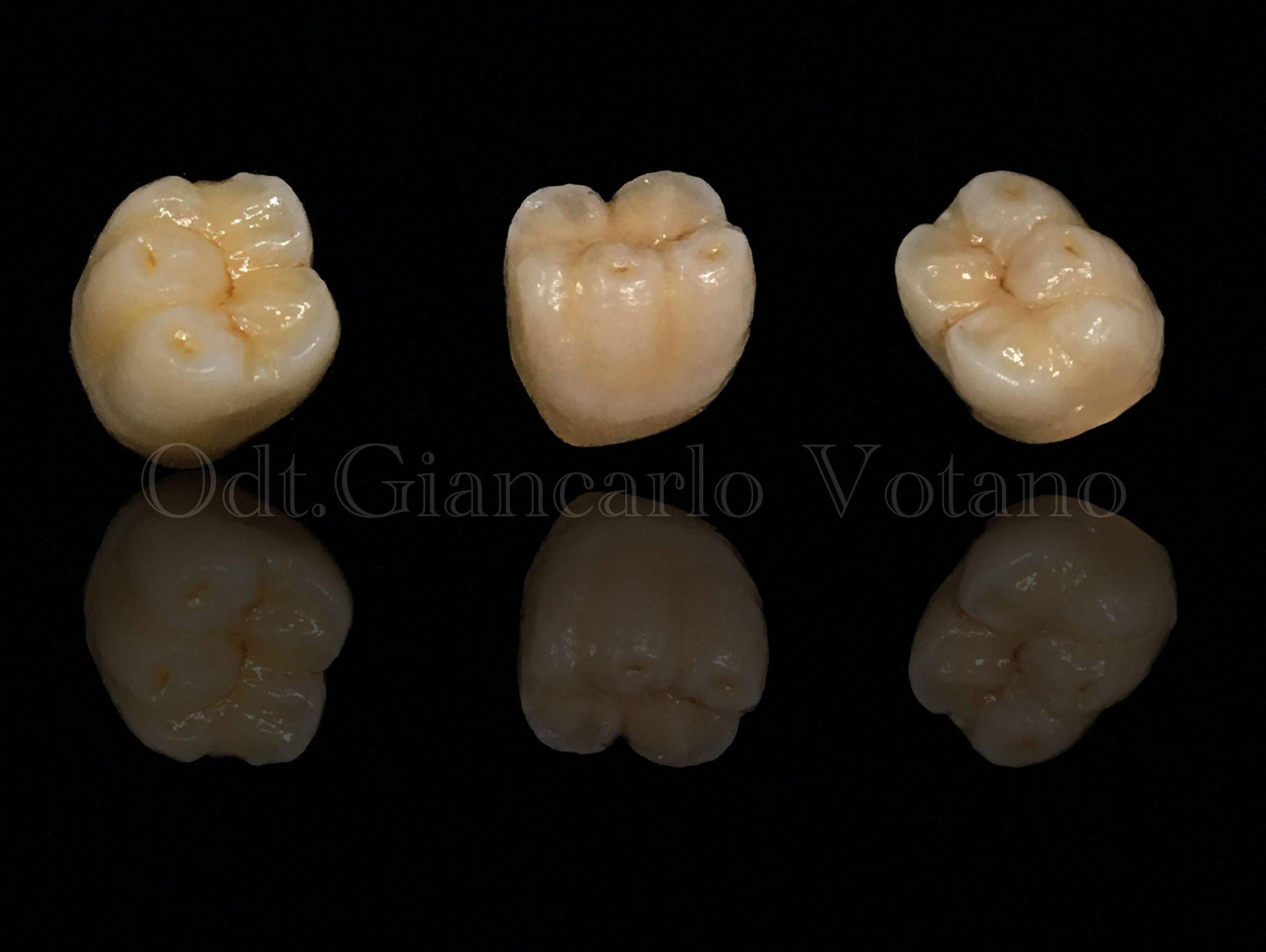 protesi fissa metallo ceramica dental house giancarlo votano