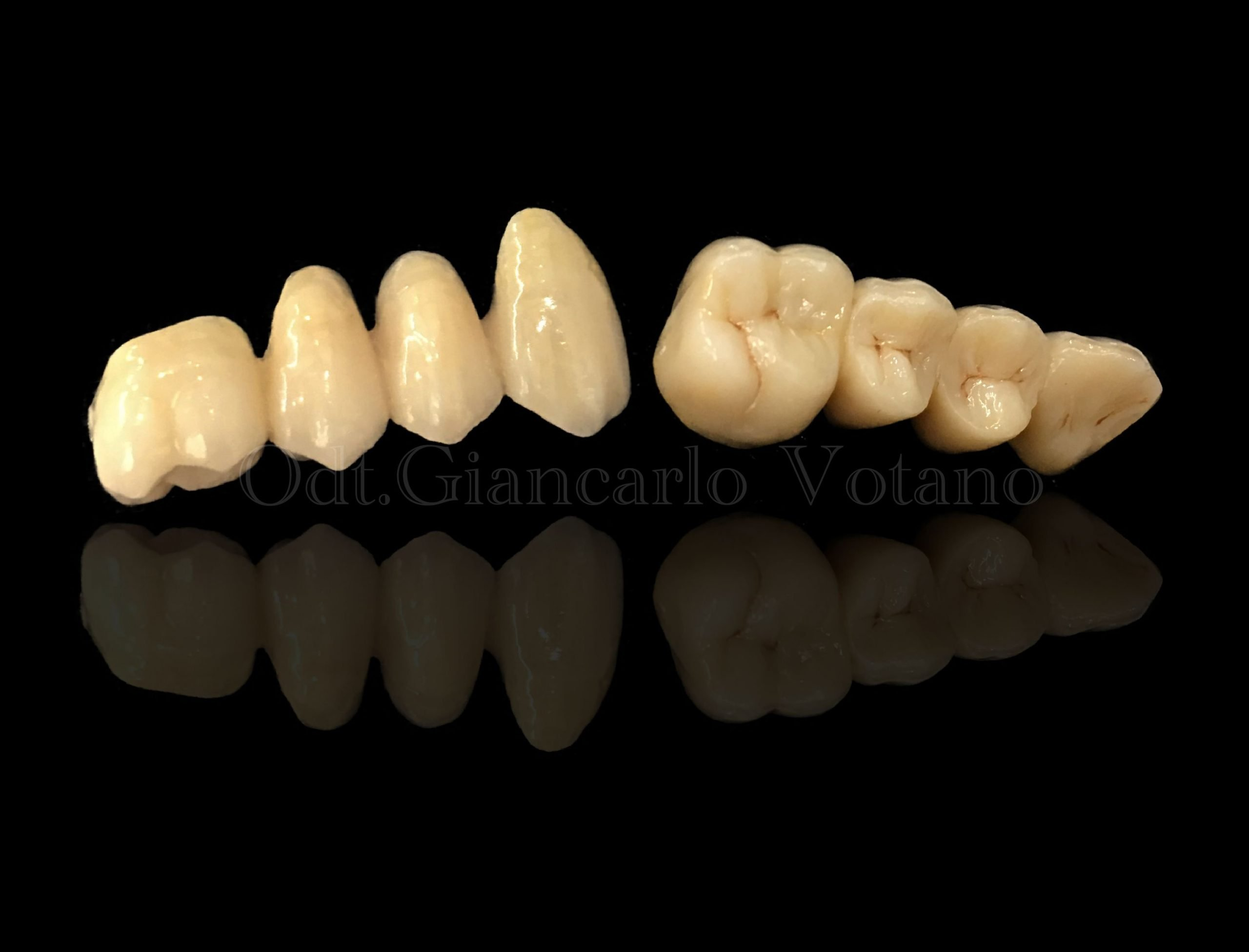 protesi fissa zirconia ceramica dental house laboratorio odontotecnico reggio calabria
